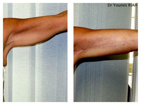 dr riah chirurgie esthetique bastia lifting des bras des cuisses