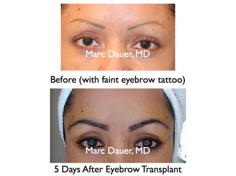 eyebrow transplant spiky hairs 300 ugrafts of leg hair