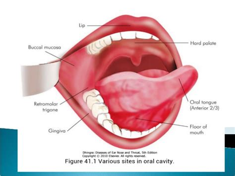 Floor Of Mouth Anatomy by Common Benign Oral Cavity Disorders By Dr Vijay Kumar