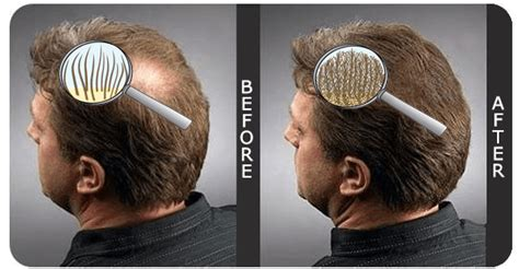before and after thinning mens haircut hairfor2 technology amazing hair thickening spray full