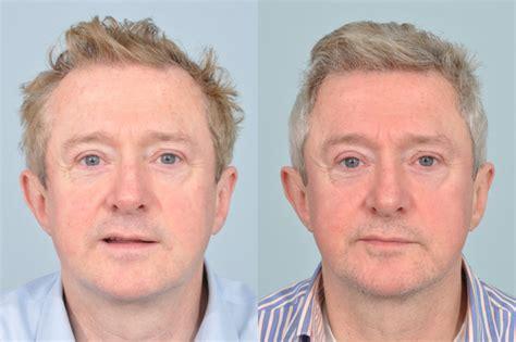 declan donnelly hair transplant britain s top surgeons