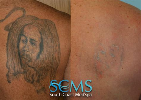 laser tattoo removal gallery before and after laser