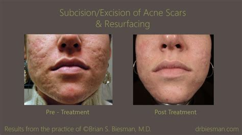 acne scar treatment brian biesman md nashville tn