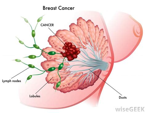 bead like lump in breast what do breast cancer lumps feel like with pictures