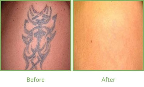 tattoo removal laser how much