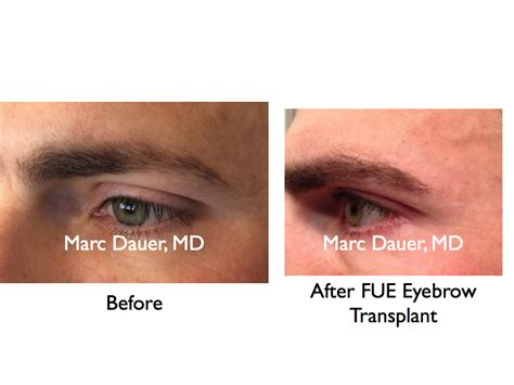 eyebrow transplant spiky hairs eyebrow hair transplant via fue hair transplant los