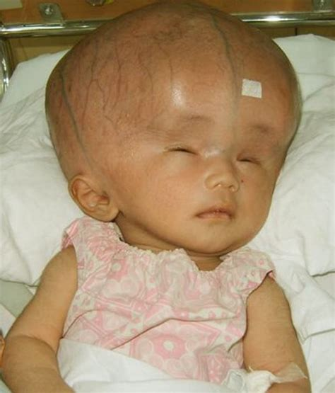 with pictures hydrocephalus pictures symptoms causes treatment in