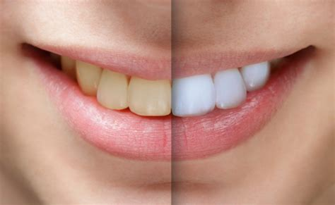 Want a whiter and brighter smile?     Hatamian Dentistry
