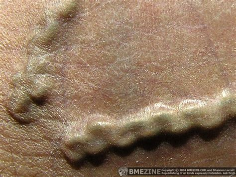 gential beading top rib implants images for tattoos