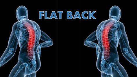 flat back flat back