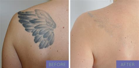 laser tattoo removal in ny