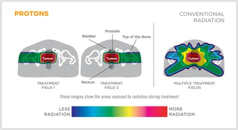 Proton Cancer by Proton Therapy For Cancer Treatment