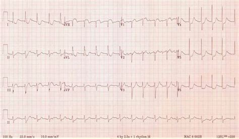 st maker st elevation in avr and lmca stenosis