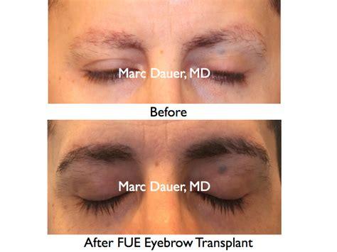 eyebrow transplant spiky hairs eyebrow transplant spiky hairs 300 ugrafts of leg hair