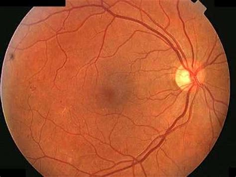 venous beading occur as retinal ischaemia progresses beading is a useful