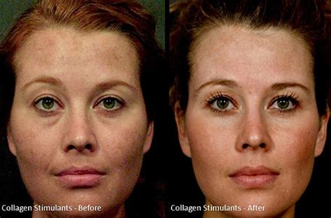 before and after collagen stimulants skin care clinic cosmetic