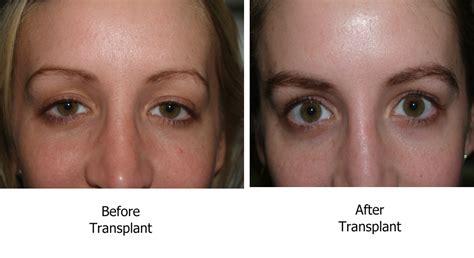 eyebrow transplant spiky hairs heavy duty beauty eyebrow transplant procedure ageistbeauty