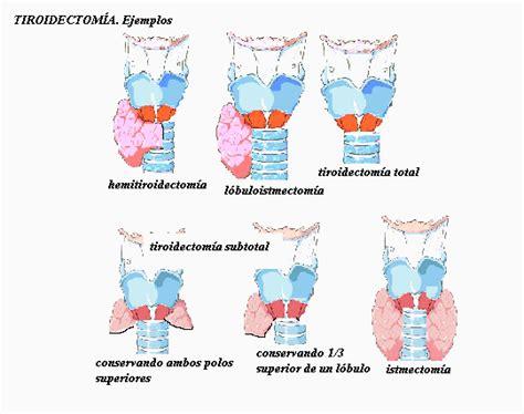 cadenas ganglionares slideshare tiroidectomia