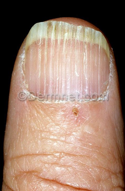 nail beading ridging beading photo skin disease pictures