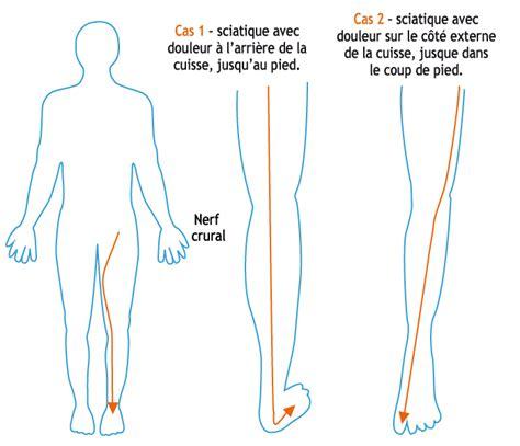 comment soigner une cruralgie sciatique rapidement comment soulager une cruralgie sciatique