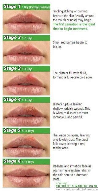how to treat herpes cold sores on the of