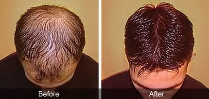 sebum on scalp baldness is one of the greatest causes of insecurity in