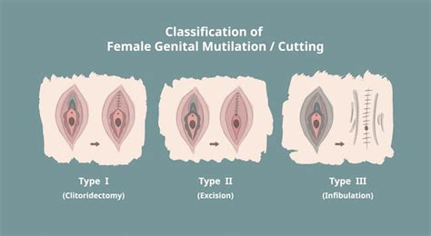 Modification Mutilation by Why The Against Mutilation Should Be