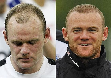declan donnelly hair transplant robbie williams and wayne rooney hair transplants the
