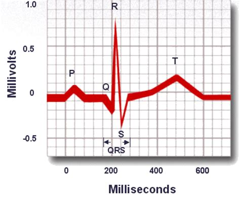 related keywords suggestions for normal qrs interval