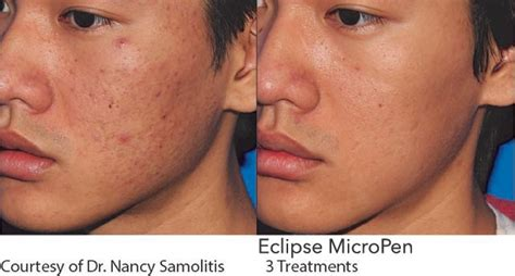 acne scarring treatment in irvine orange county