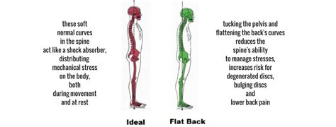 flat back flat spines back and bulging discs simply bowen