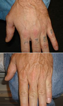 13 tattoo removal methods and how to remove tattoo