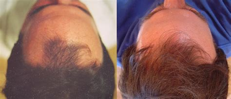 hair loss treatment pictures