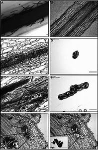 Identification and laser capture microdissection of ...