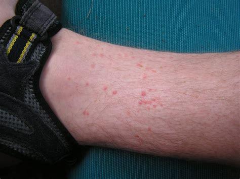 flea bites in foot