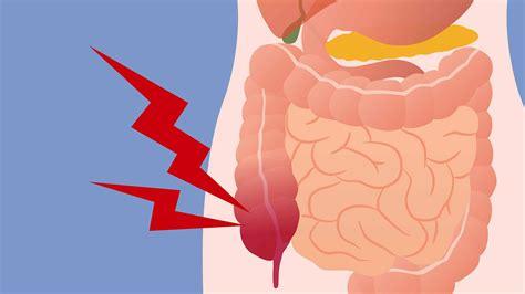 Best way to rid body of uric acid   high uric acid vitamins gout natural home remedies lemons