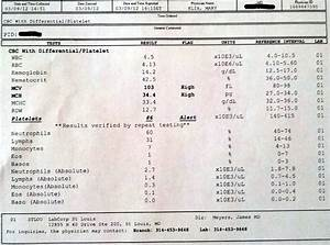 Iron Deficiency Anemia Lab Results | Symptoms 101 ...