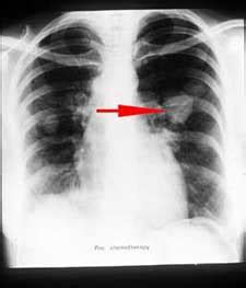Lung Cancer Symptoms, Diagnosis And Treatment Cancer Advice. Crisis Signs Of Stroke. Hess Signs. Streptococcal Infections Signs. Persian Signs. Green Infrastructure Signs. Reflective Signs Of Stroke. Spirit Animal Signs Of Stroke. Freedom Signs Of Stroke