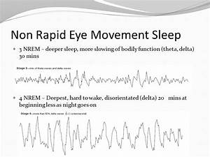 Sleep – the most common ASC - ppt video online download