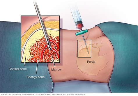 Bone Marrow Biopsy And Aspiration  Mayo Clinic. House Insurance Estimate All Credit Mortgage. Kenmore Bottom Freezer Refrigerator Problems. Massage School Illinois University Of Columbia. Accounting Software In The Cloud. Ben Archer Health Center Las Cruces Nm. Plastic Surgeons In Miami Fl. Markowitz Efficient Frontier. Information Technology Network