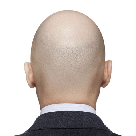 Alopecia Bald Patch On Back Of Head  Doctor Answers On. Precaution Signs Of Stroke. Asma Signs. Native American Signs. Corona Signs