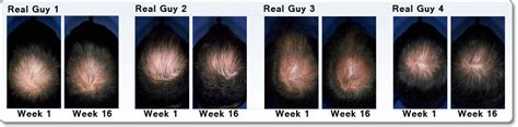 rogaine for hair regrowth treatment 5 minoxidil topical aerosol easy to use