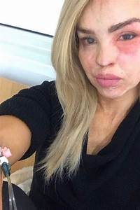 Katie Piper reveals a heartbreaking conversation with ...
