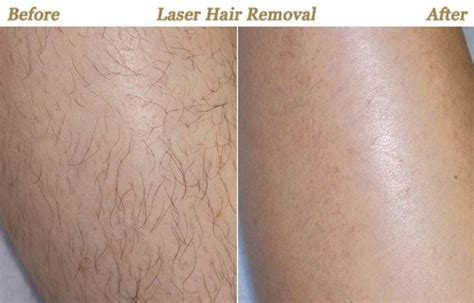 Laser Hair Removal Minneapolis Mn. Notre Dame Mba Chicago Nema Enclosure Ratings. Installing Hot Water Heater Act Sales Tool. Low Cost Term Life Insurance Rates. Harvard Summer Session Online Culinary Degree. Stress And Weight Loss Army Money For College. College Footbal Ranking Penis Extender Result. Best Political Science Colleges. Registered Nurse Wikipedia How To Read Arabic