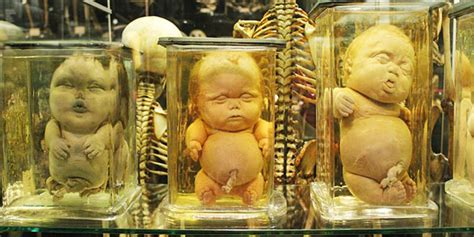 Amsterdam Museum Picasso by Deformed Babies In Jars Museum Vrolik