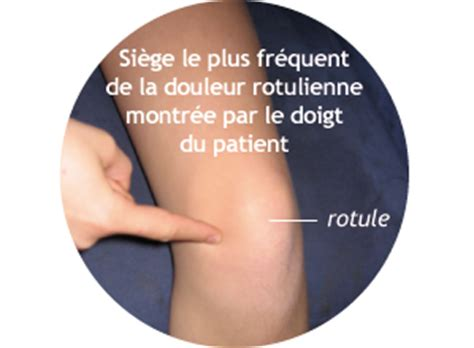 rotule clinique du sport
