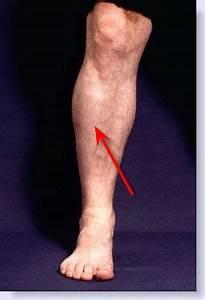 Severe Shin Splints