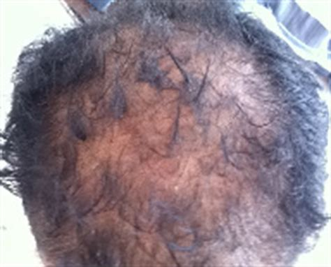 get rid excessive scalp