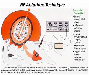 Radiofrequency ablation | Cancer Treatments | Beijing ...