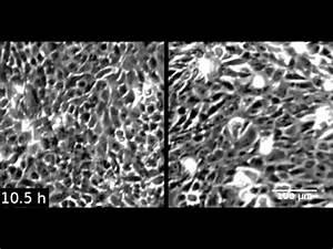 SPECC1L deficiency results in increased adherens junction ...